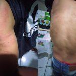 Jovem denuncia que foi torturado por patrão após ser acusado de crime que não cometeu, em Santa Helena de Goiás
